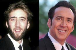 Голливудская улыбка: актеры с фальшивыми зубами