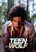 """Постер 3 из 5 из фильма """"Оборотень"""" /Teen Wolf/ (2011)"""